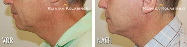 Bilder vorher und nachher: Face Lift