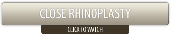 Close Rhinoplasty